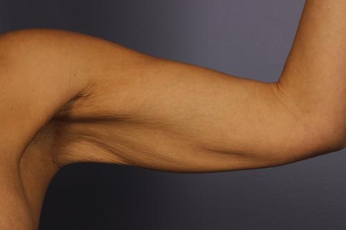 Arm Lift