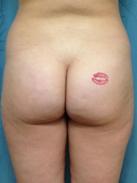 Brazilian Butt Lift Before & After Image