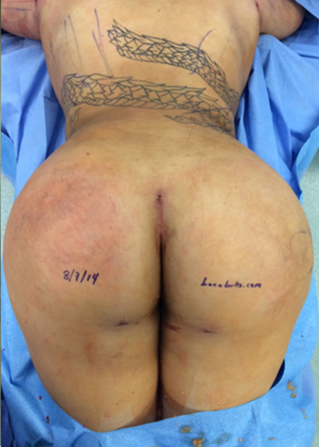 Posterior Lift Before & After Image