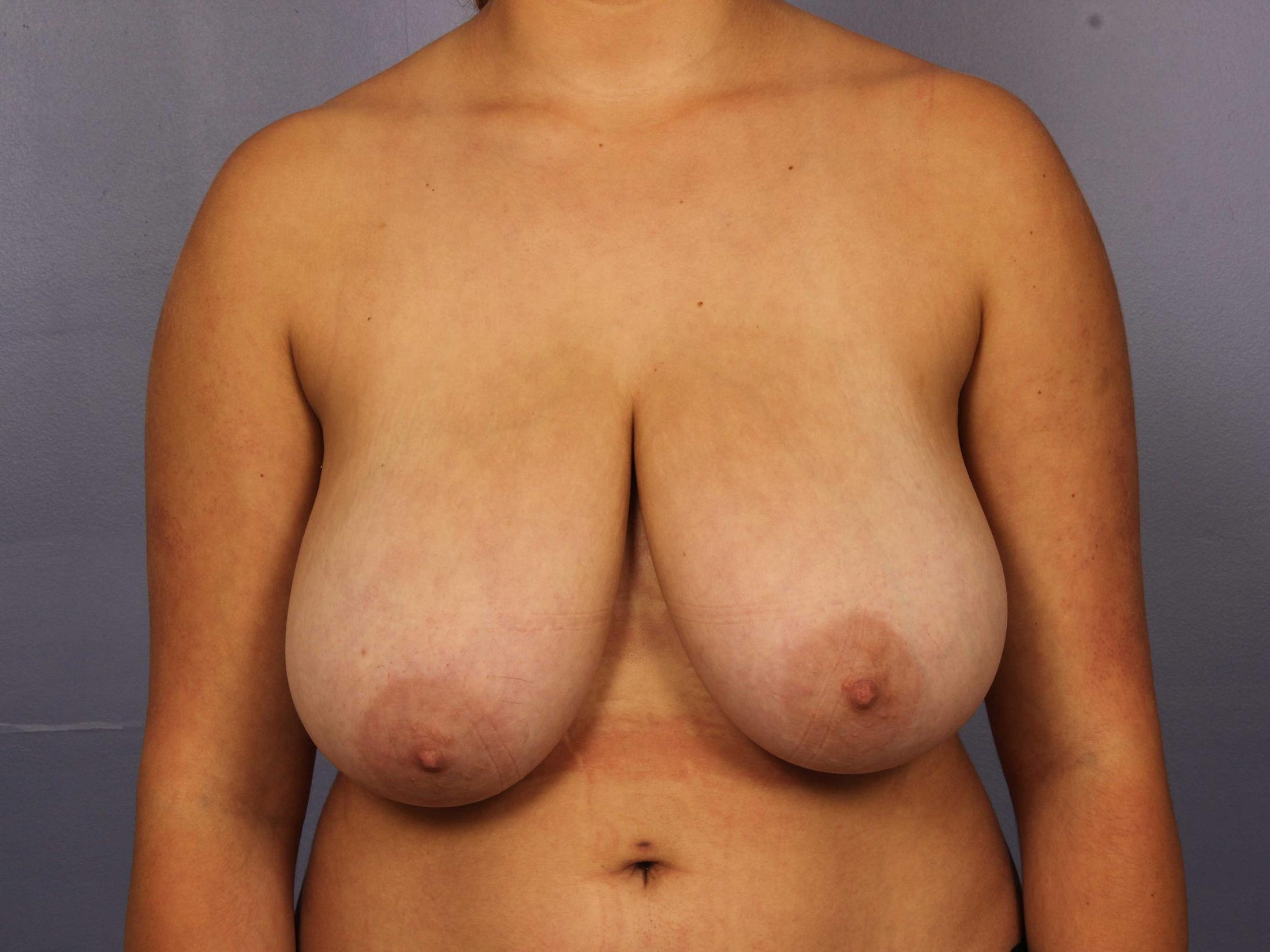 Breast Reduction (for Women) Before & After Image