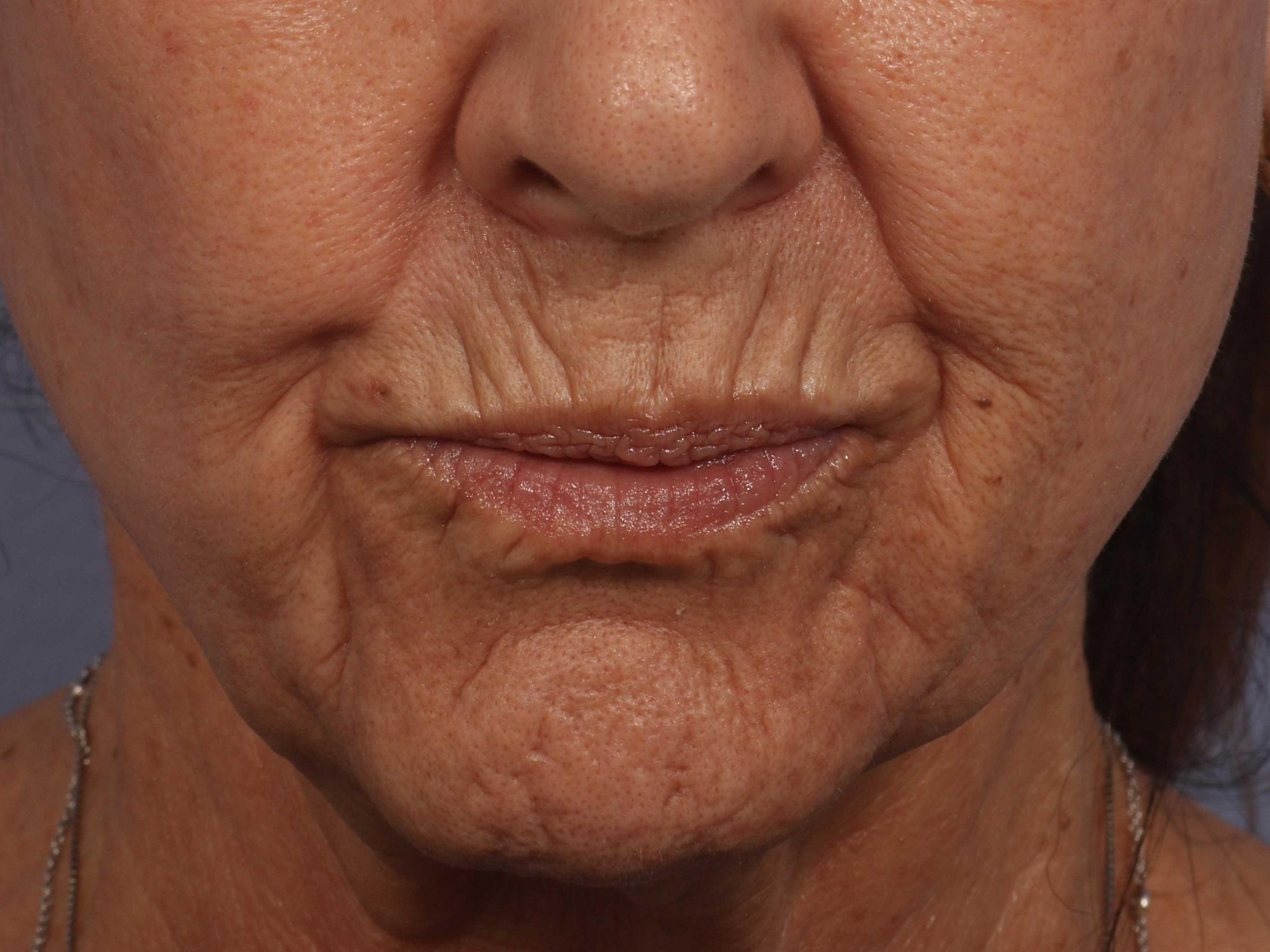 BOTOX� Cosmetic Before & After Image