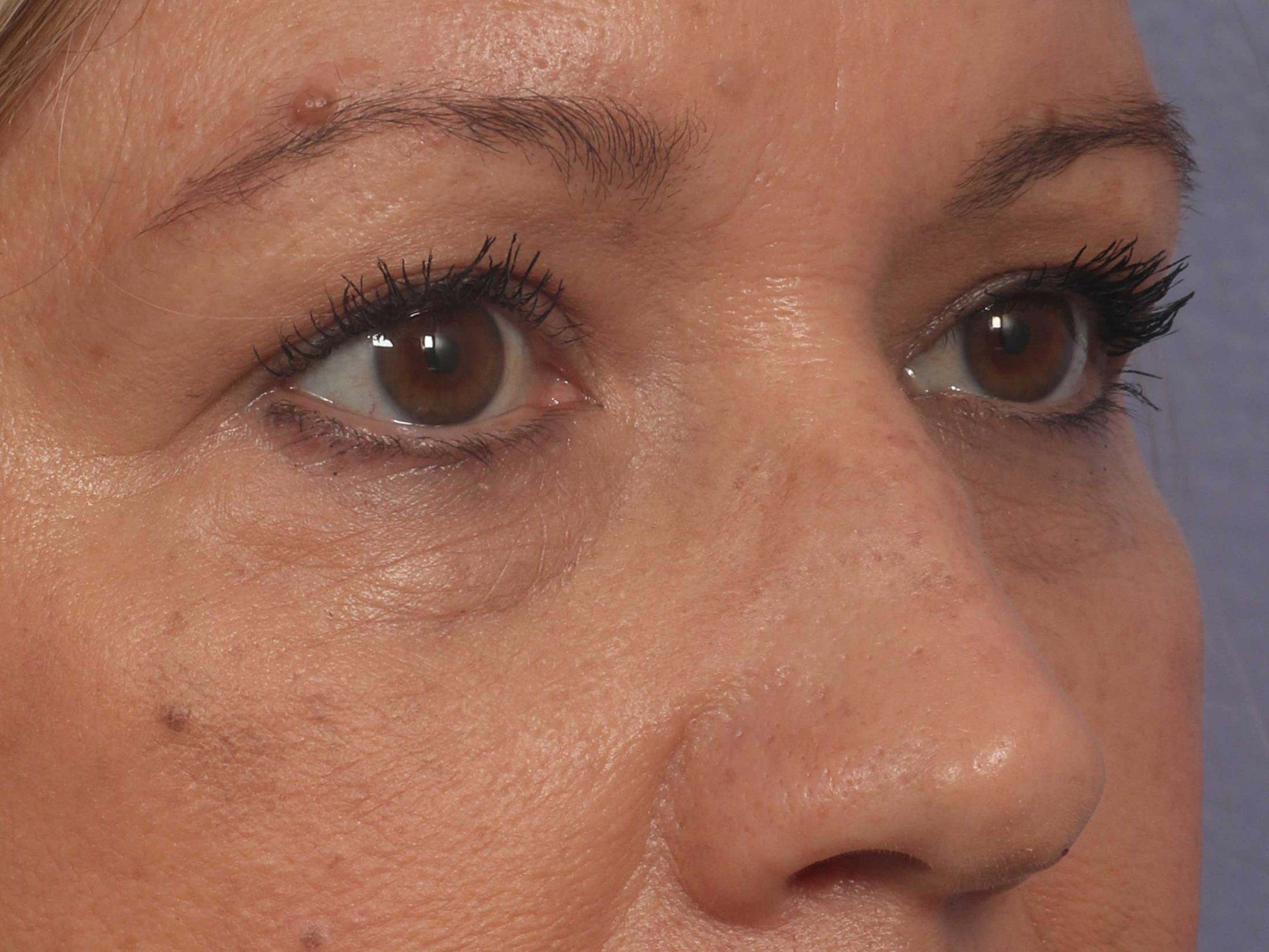 Injectable Fillers Before & After Image