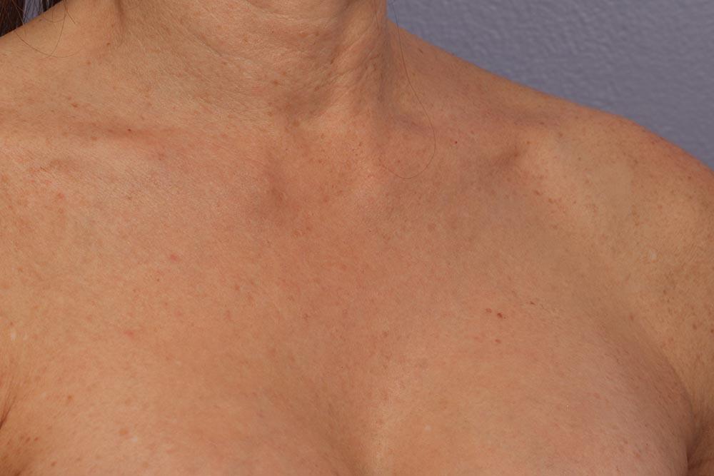 Laser Skin Resurfacing Before & After Image