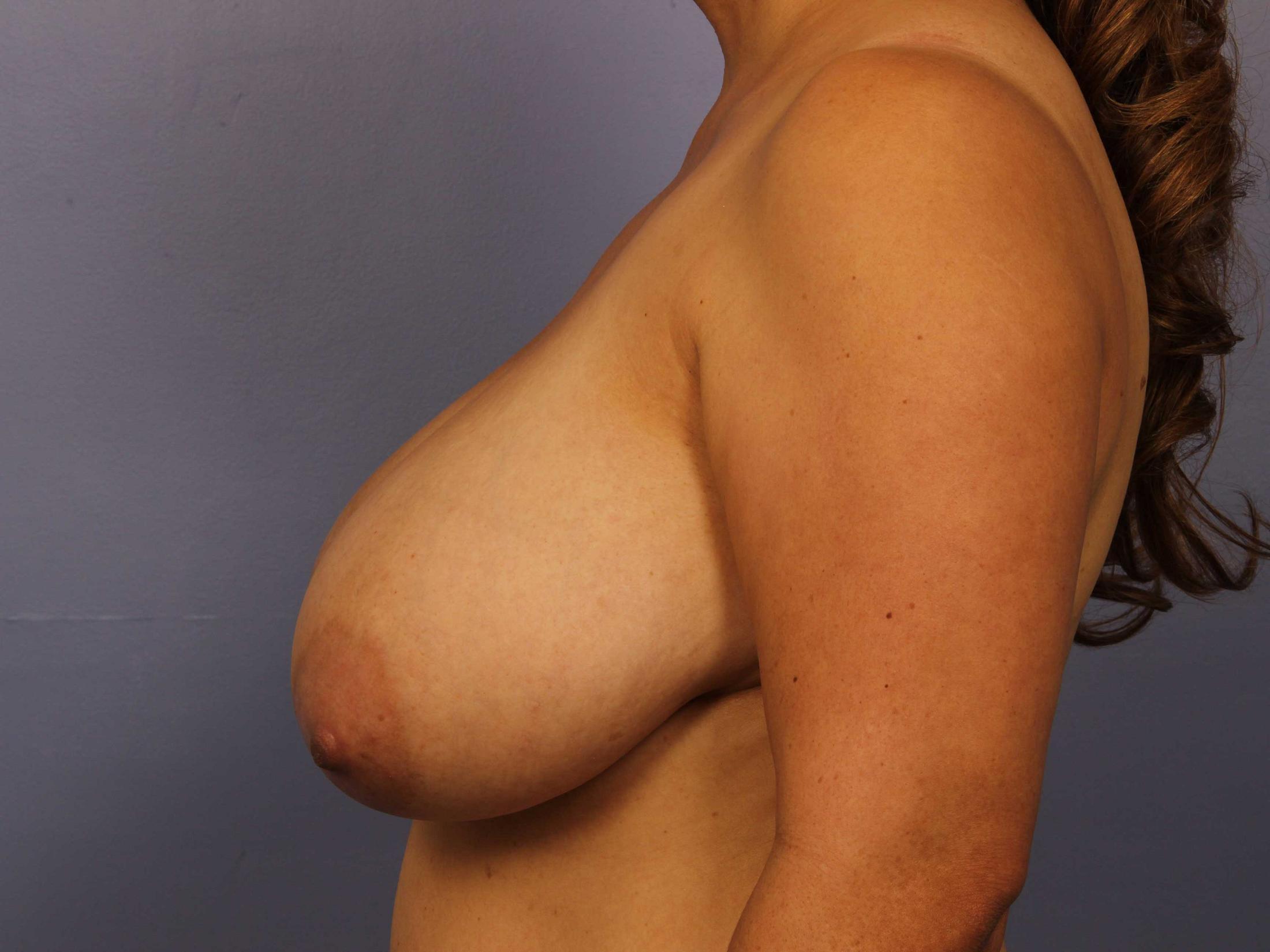Breast Reduction with Lift Before & After Image