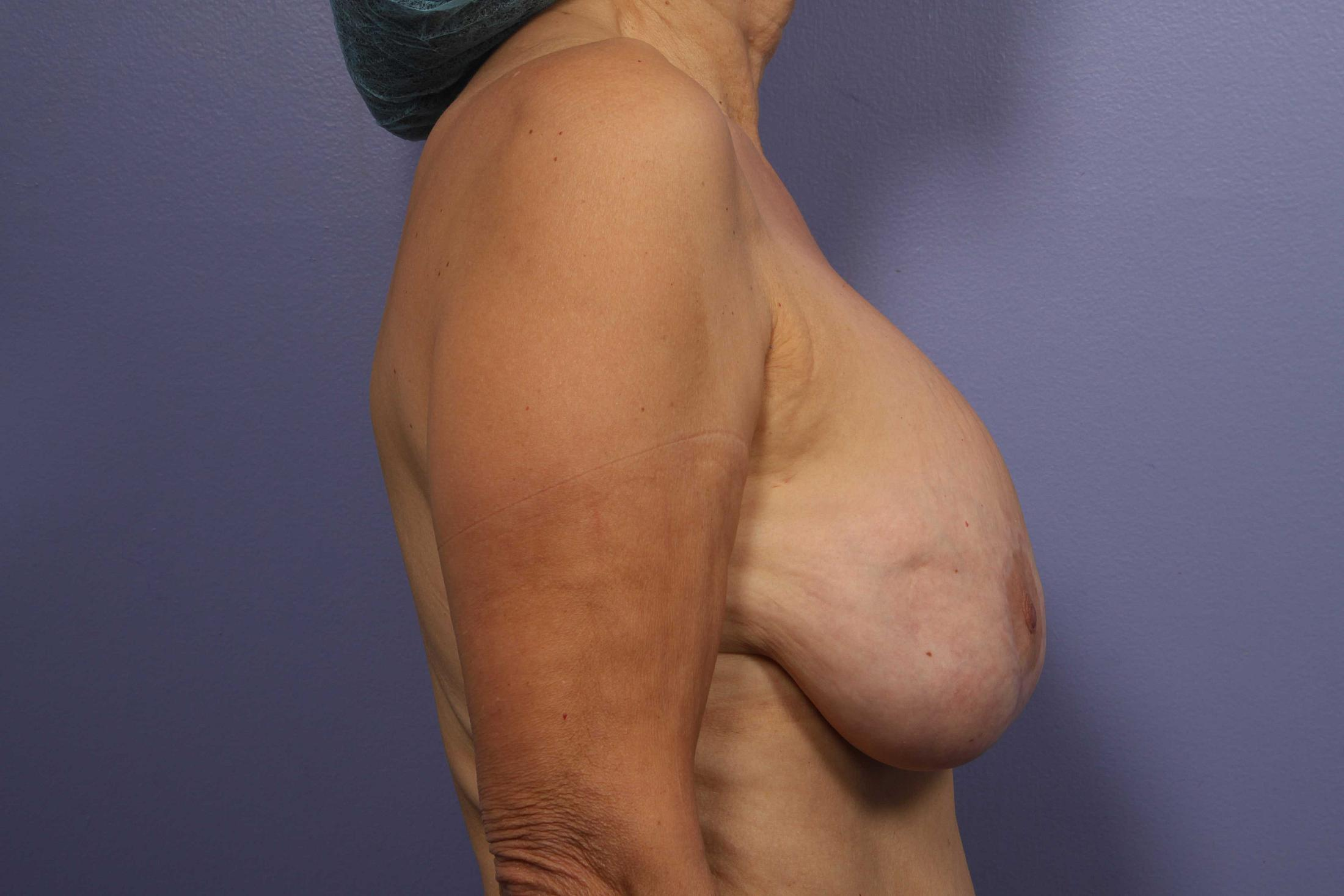 Implant Removal With Fat Grafting Before & After Image